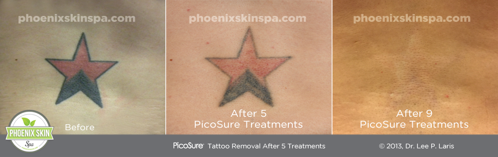 PhoenixSkinSpa_TattooRemoval_B-A2
