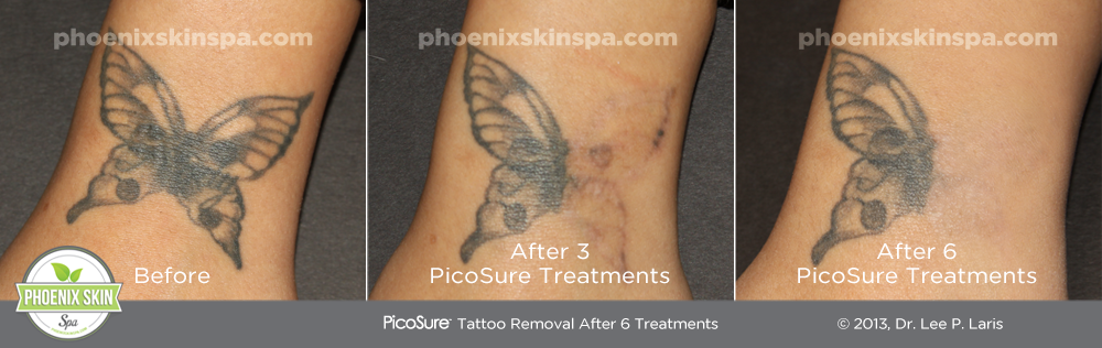 PhoenixSkinSpa_TattooRemoval_B-A3