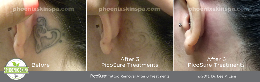 PhoenixSkinSpa_TattooRemoval_B-A4