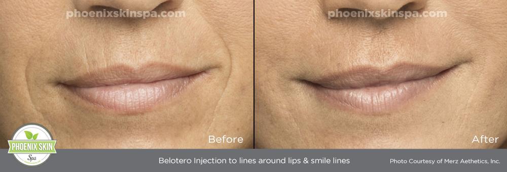 Belotero – Phoenix Skin Spa