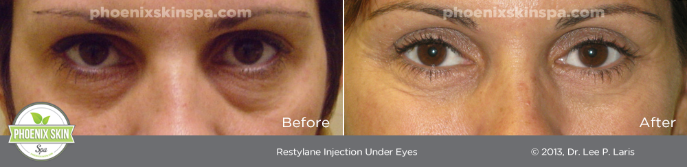 Restylane before and after_phoenixskinspa